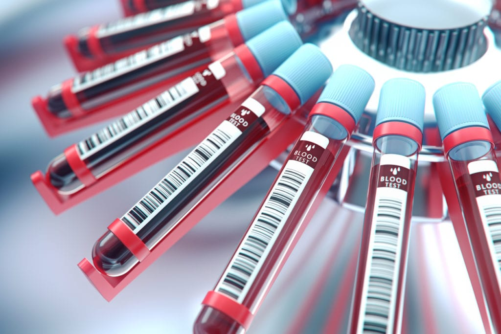 Photo: undefined, iStock Your Blood Type Might Reveal When You'll Die