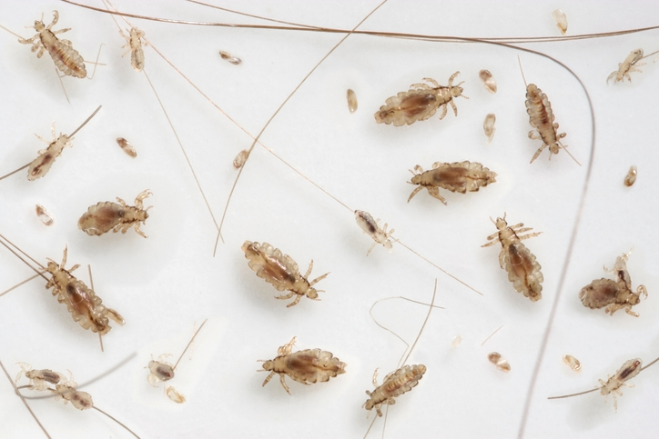 lice what you need to know